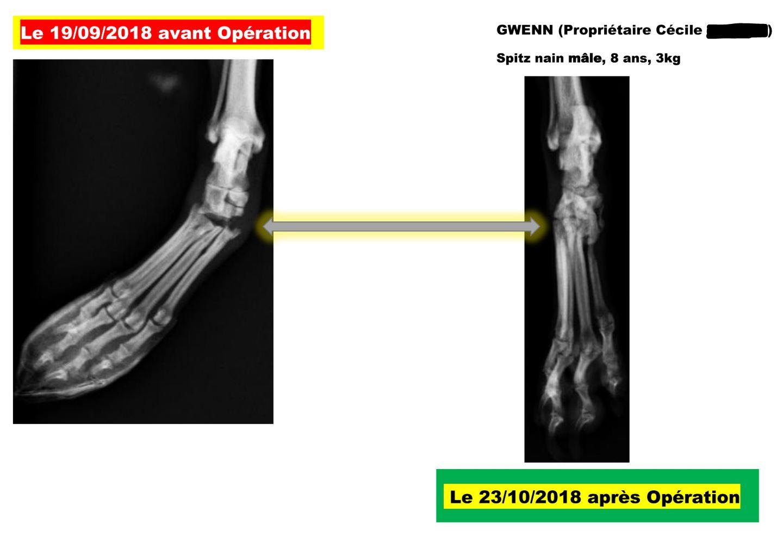 Radiographie Gwenn